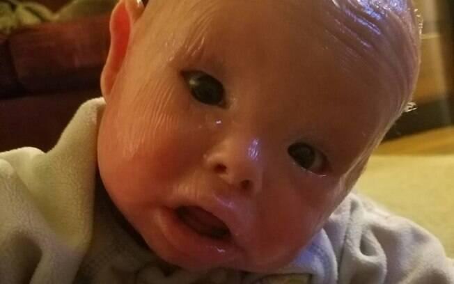 Ictiose arlequim, é uma doença rara frequentemente fatal no período neonatal, antes de o feto se desenvolver