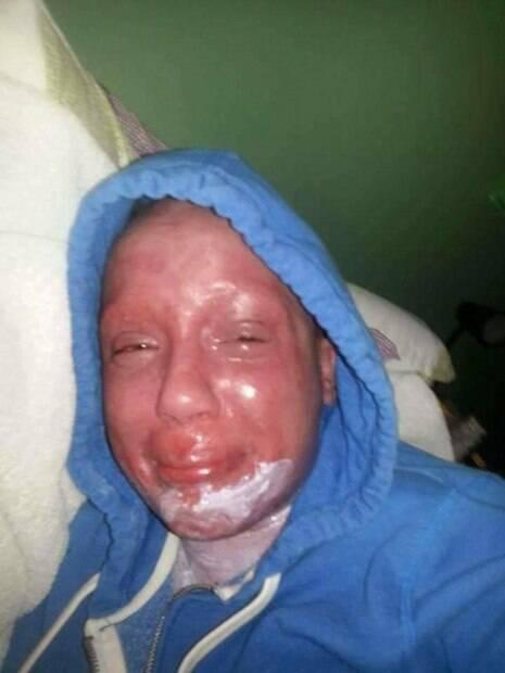 No início, quando usava os cremes de esteroides, a jovem conta que a pele chegou a apresentar melhora