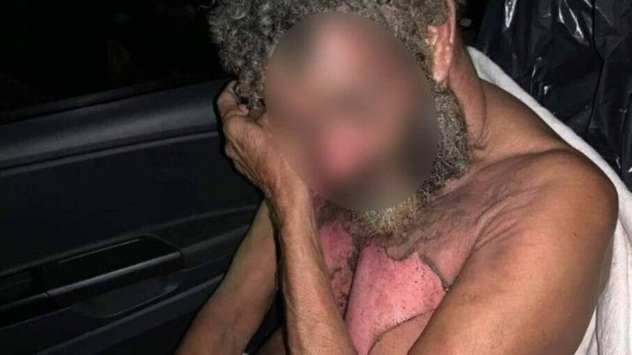 Morador de rua foi queimado enquanto dormia em Nova Iguaçu