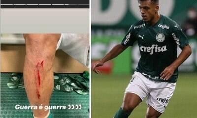 """Gabriel Menino mostra lesão na perna após jogo: """"Guerra é guerra"""""""