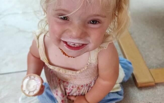 Ellouise Thompson tem apenas dois anos e recebeu o diagnóstico da doença rara que não tem nome há dois meses
