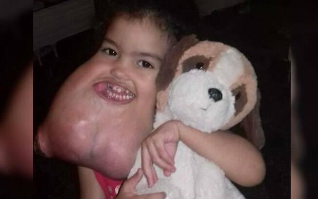 Tumor de Melyssa começou a crescer quando ela ainda tinha um ano, mas foi inicialmente tratado como uma íngua
