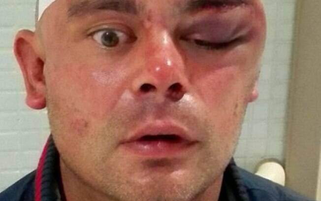 Canibal devora rosto de britânico em Ibiza
