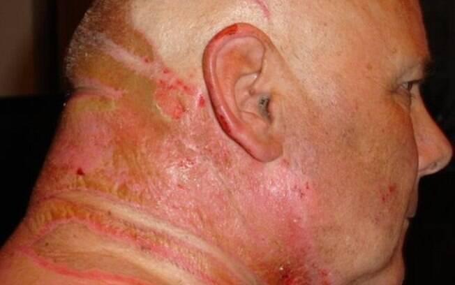 Feridas produziram grandes cicatrizes
