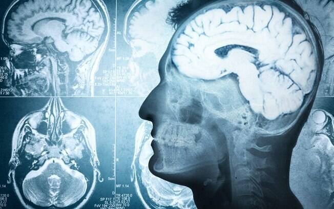 Massa instalada em cérebro do garoto cresce de 4% a 5% ao ano, e poderá matá-lo se não for removida