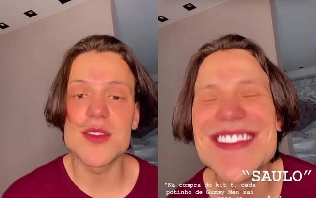 Stories do influenciador que evidenciam sua harmonização facial viram memes no Twitter