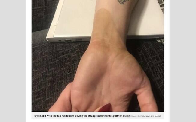 Mistério resolvido: a tinta do bronzeamento artificial tinha saído no braço de Jay e isso resultou no desenho inusitado