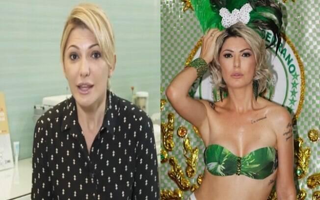 Antes e depois de Antonia Fontenelle aplicar botox