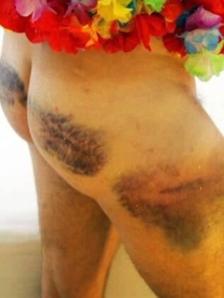 Jornalista Bernardo Tabak publicou imagem com hematomas deixados pela GM