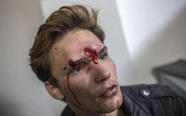 Professor fica ferido em confronto com policia. Foto: SMSC/29.04.15