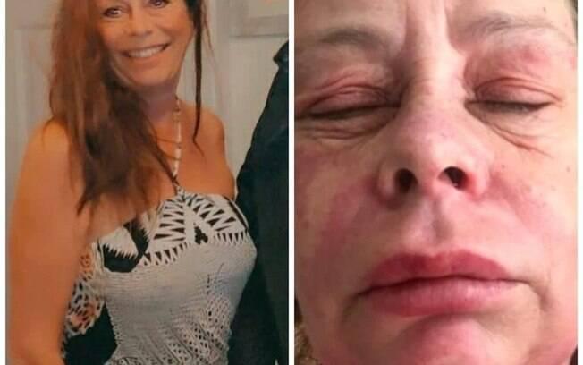 Britânica tem rara reação alérgica após receber vacina da AstraZeneca contra Covid-19