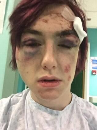 Robbie Kingsford, de 18 anos, foi agredido junto de seu amigo por dois homens vestidos de fada em Londres, no último sábado (01)