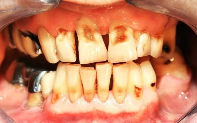 Má higienização bucal pode causar gengivite, que, além de fazer sangrar, causa  sensibilidade e danifica os dentes