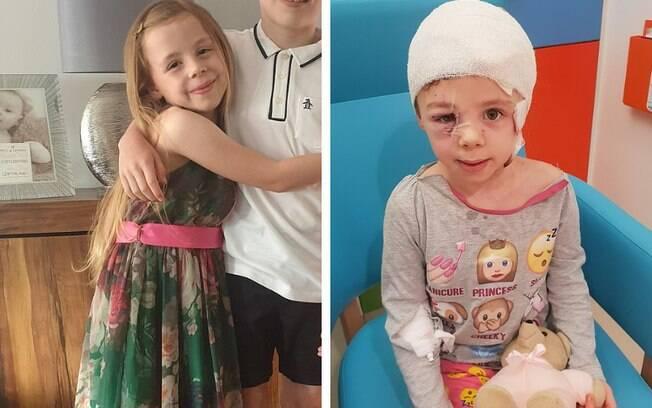 menina atacada por cachorro