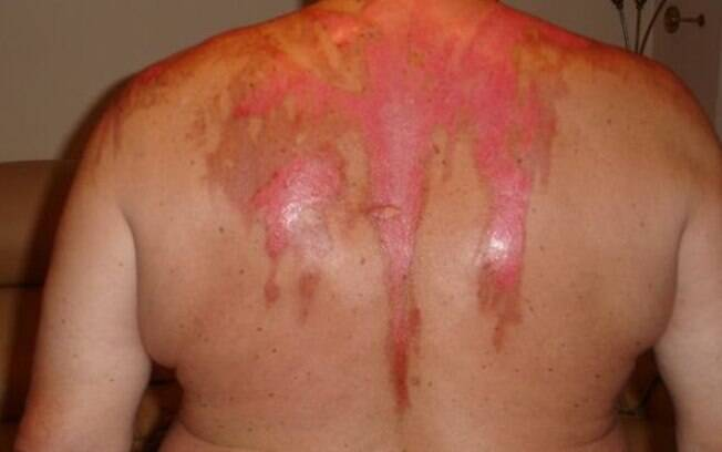 Ken Gregory sofreu queimaduras graves quando mulher jogou água fervente sobre ele