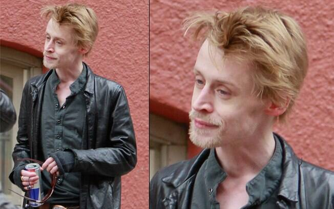 A magreza do ator Macaulay Culkin