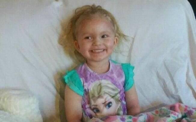 Apesar de algumas marcas e machucados ainda existirem pelo corpo por conta da reação, menina voltou a sorrir