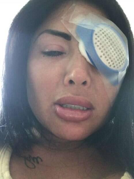 Ao querer mudar cor dos olhos, mulher quase fica cega