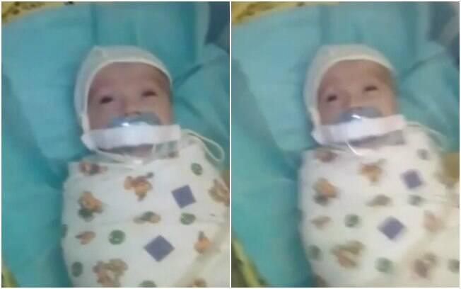 Bebê foi encontrado em hospital com chupeta presa à boca com esparadrapo; imagens causaram revolta nas redes