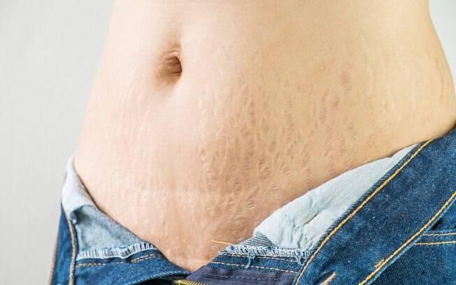 Para saber como acabar com as estrias e amenizar as marcas,  o mais indicado é buscar orientação de um dermatologista