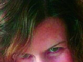 Ellie James, 44, fala como o problema a afeta