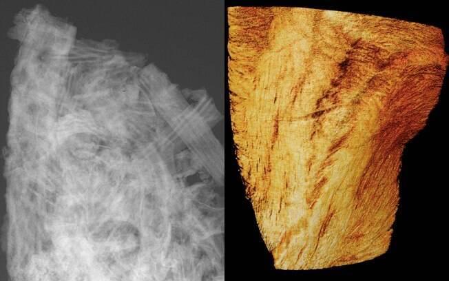 microtomografias