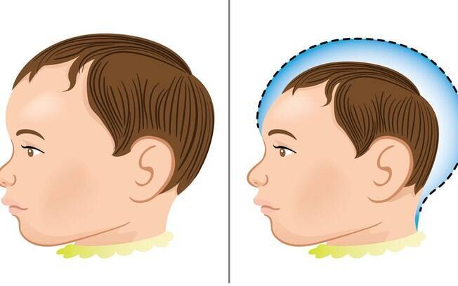 Brasil tem 508 casos confirmados de microcefalia e cerca de 4 mil sendo investigados