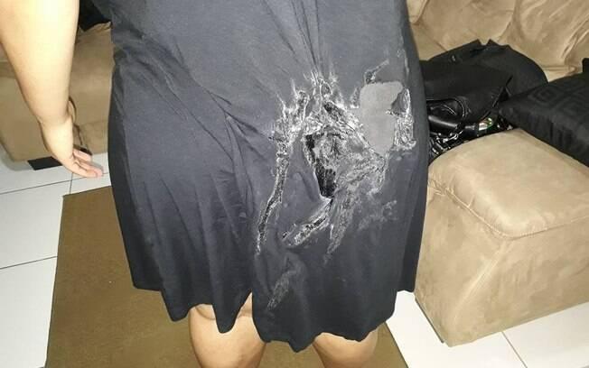 Ataque no metrô: Karoline explicou que começou a sentir um calor muito forte e achou que vestido estava pegando fogo