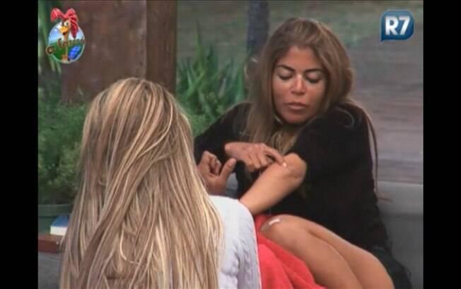Peoas mostram cicatrizes, Raquel, no cotovelo e Valesca, nos dedos