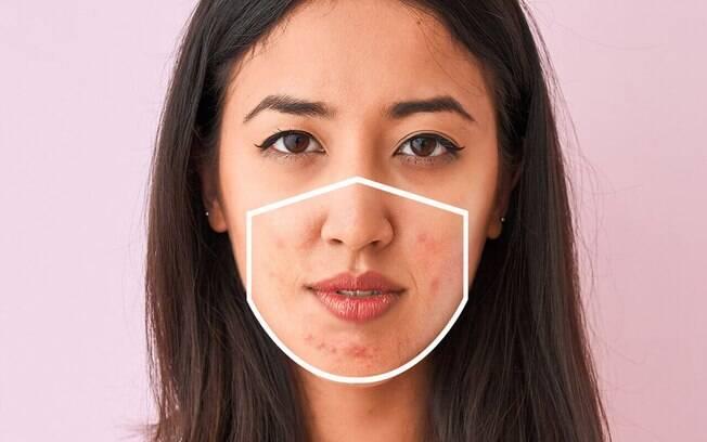 Se não tratada, maskne pode acabar gerando problemas maiores