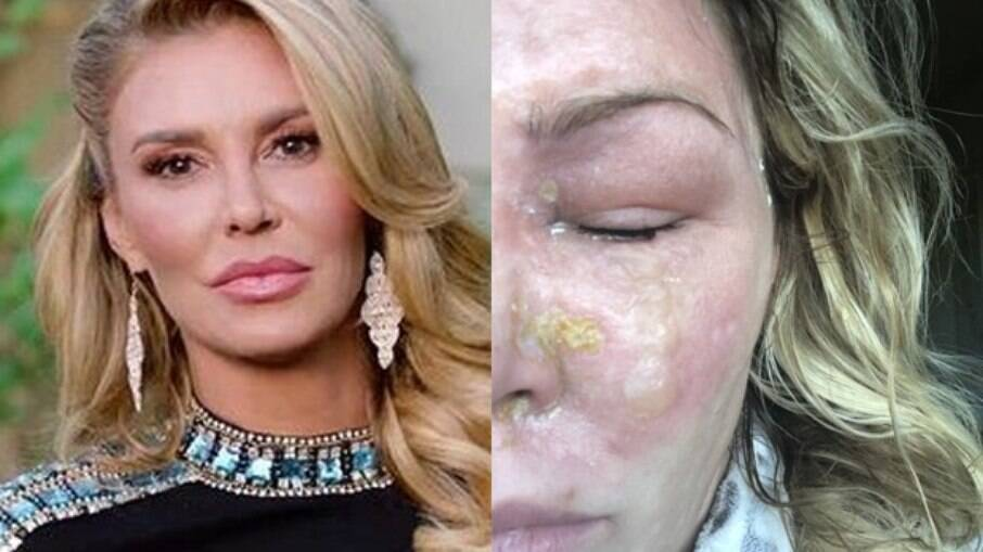 Brandi sofre com queimaduras causadas pela psoríase