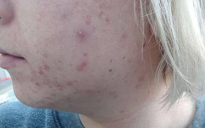 Apesar de algumas cicatrizes causadas pela acne severa, em três meses  de tratamento já foi possível ver a diferença