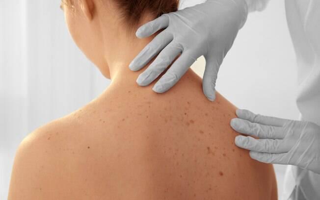 Anualmente, 180 mil brasileiros recebem o diagnóstico de câncer de pele, sendo 4% melanoma
