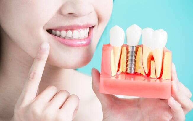 Falhas no implante dentário podem estar  relacionadas a certos fatores de saúde