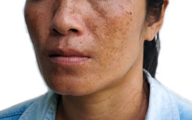 O melasma causa manchas escuras no rosto e é mais propenso em mulheres, que representam 90% dos casos