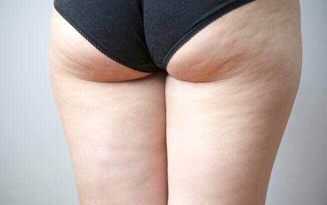 A assadura por causa do atrito entre coxas grossas também pode causar manchas e, por isso, é ideal visitar um médico