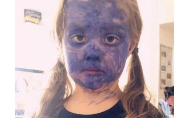 A pequena Skyla-Rae Muttram, de cinco anos, pintou o próprio rosto com caneta permanente para se parecer com personagem