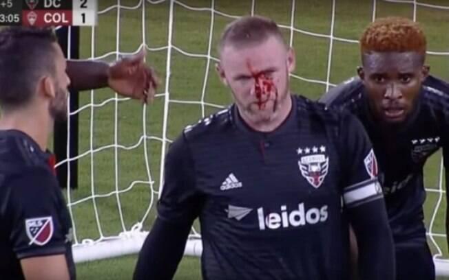 Rooney sangrou bastante após dividida com zagueiro adversário