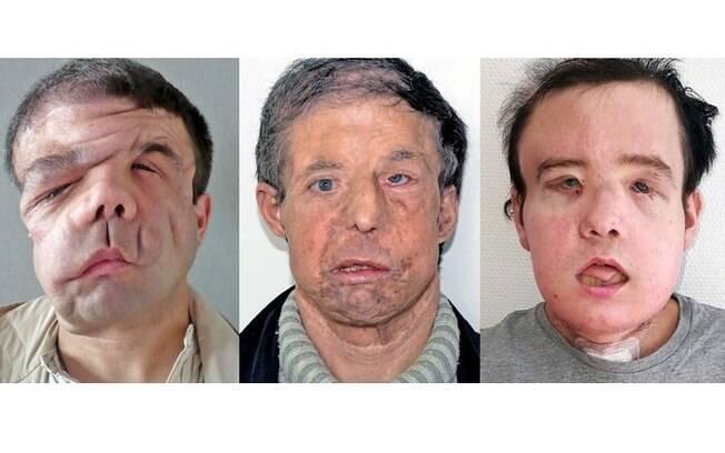 Depois de passar por dois transplantes de rosto, o francês Jérôme Hamon se diz feliz e satisfeito com sua nova aparência