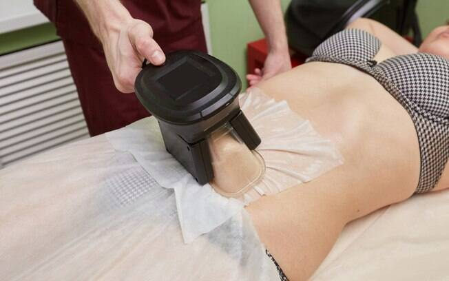 Criolipólise está entre os tratamentos estéticos queridinhos para acabar com gordura e conseguir um abdômen definido