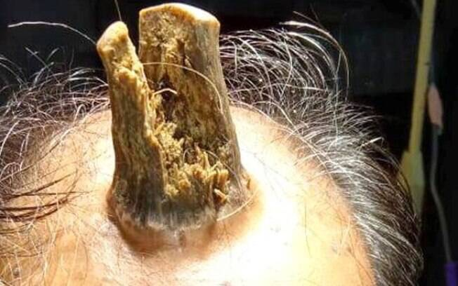 Homem precisou passar por cirurgia para retirada da massa em formato de chifre