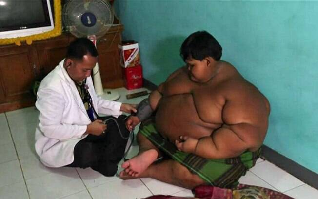 Aos 10 anos, menino da Indonésia pesa mais de 180 kg