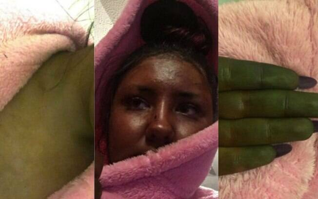 Danni Bruce ficou verde após bronzeamento artificial que deu errado