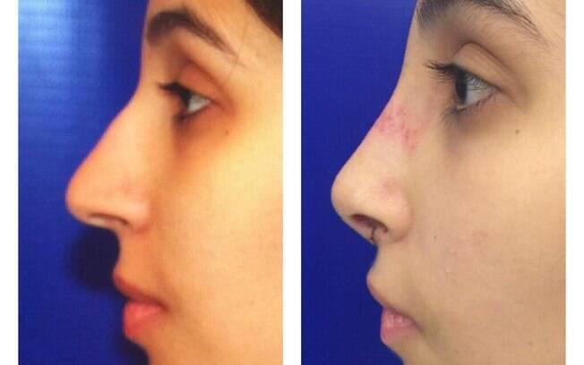 Antes e depois de uma rinoplastia