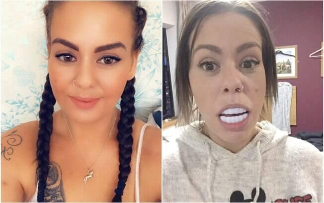 Sara Hamilton comprou uma prótese para os dentes na internet e resultado surpreendeu