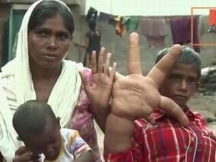 Kaleem vive com a família em região humilde, na Índia