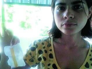 Na foto, Fernanda mostra um dos drenos deixados em seu peito