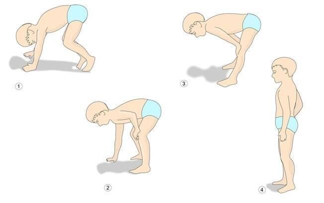 Um dos sinais clássicos da distrofia muscular de Duchenne é conhecido como manobra ou sinal de Gowers; veja imagem