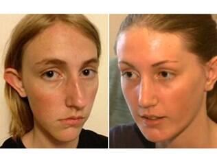 A estudante Nadia Ilse antes e depois da plástica financiada por uma ONG: orelhas de abano eram motivo de bullying