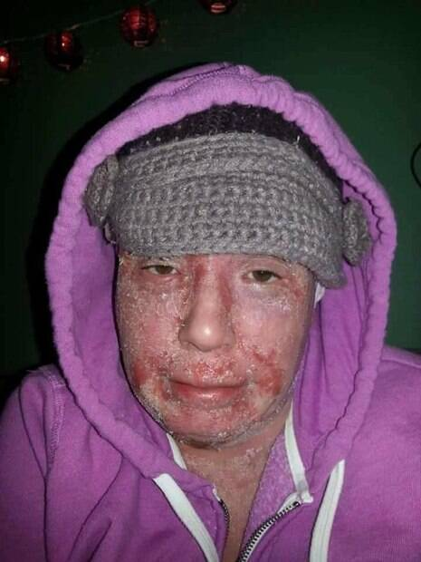 Com o passar do tempo, os cremes de esteroides começaram a fazer mal para a pele de Nina